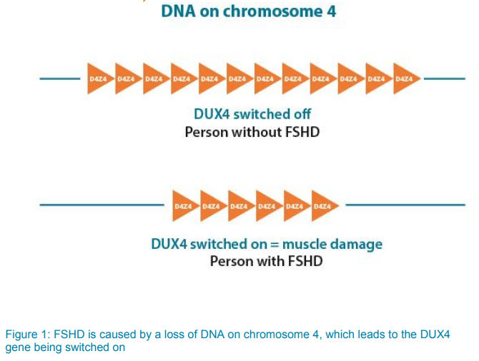 Image showing DNA on chromosome 4 on person who doesn't have FSHD where the DUX4 gene has been switched off compared to a person who does have FSHD where a loss of DNA on chromosome 4 leads to the DUX4 gene being switched on which causes muscle damage