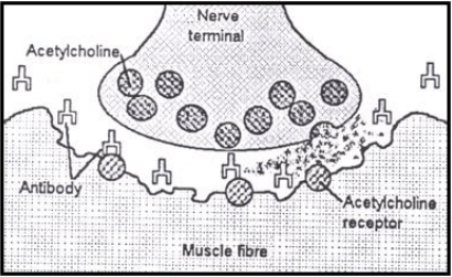 Diagram of a neuromuscular junction in people with myasthenia gravis